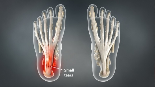 Plantar fasciitis most frequent area of pain