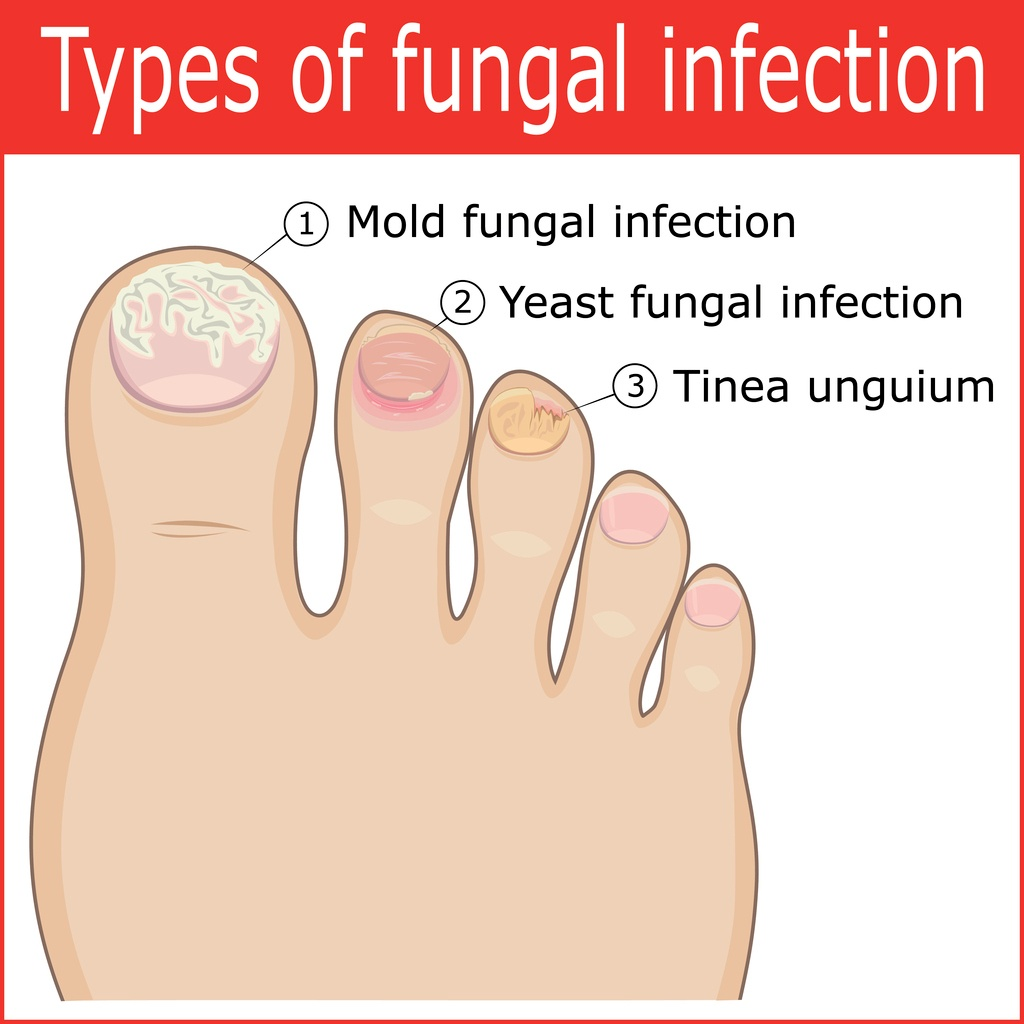 Types-of-toenail-fungal-infection